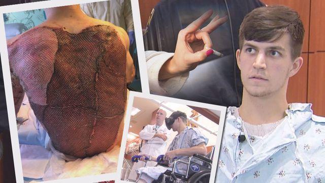 Motorcycle Burn Victim Insane Throttle Biker News